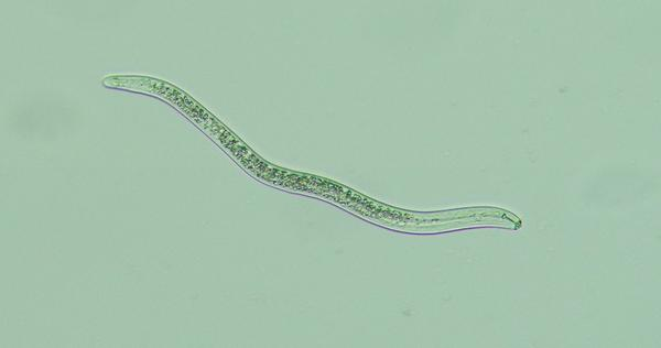 Worm-like lesion nematode as seen under the microscope
