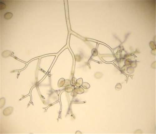 Photo of sporangiophores bearing sporangia.