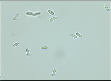Colletotrichum spores